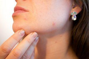 gezichtsbehandeling in Apeldoorn